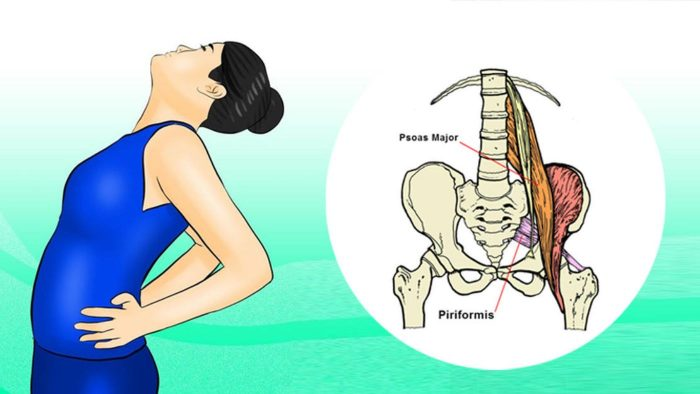Sciatica and what you can do about it