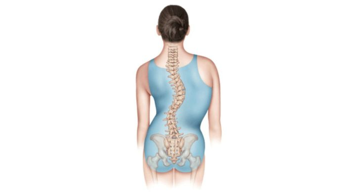 Scoliosis and how it affects you