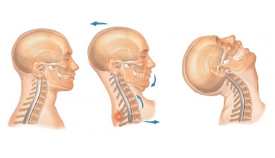 side view of neck in whiplash